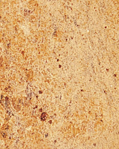 Madurai Gold Granite Slabs Wholesalers